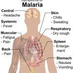 Malaria #2